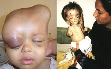 niños dañados por radiación