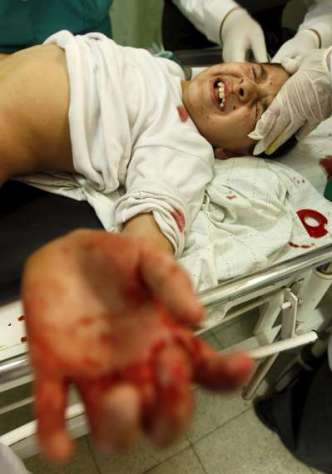 Niñas resultsron heridas por el reciente ataque israeli al sur de Gaza